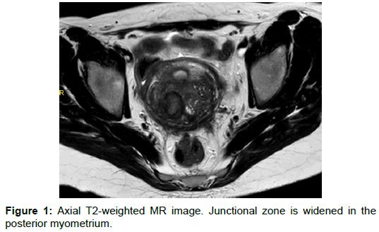 radiology-posterior-myometrium-7-292-g001